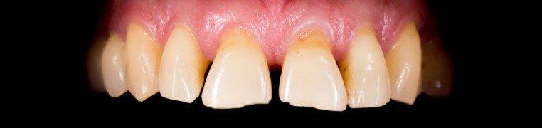 frank-zubi-prije