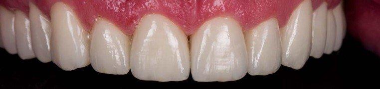 jimmy-zubi-poslije