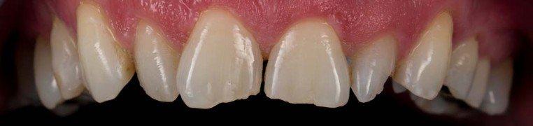 jimmy-zubi-prije